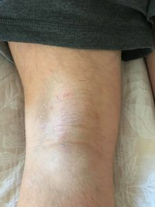Eczema relief with Calmmé