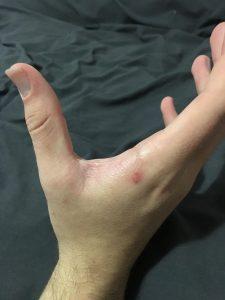After Calmmé applied to eczema